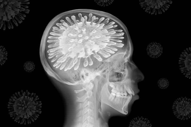 Coronavirus: The Pandemic Is Changing Our Brains